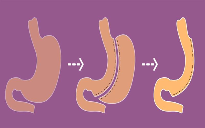 به طور کلی انواع عمل اسلیو معده در ۲ نوع زیر می باشد: