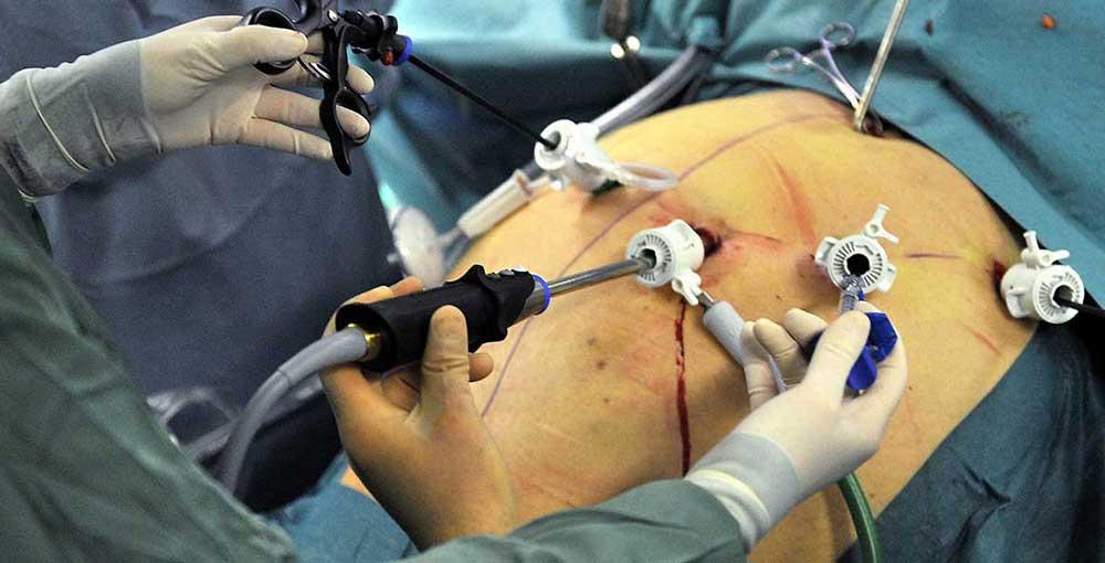 روشهای مختلف درمان چاقی با استفاده از جراحی