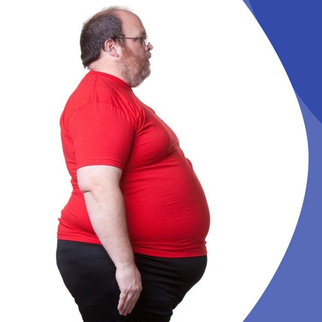 چاقی بر اثر عصبی شدن