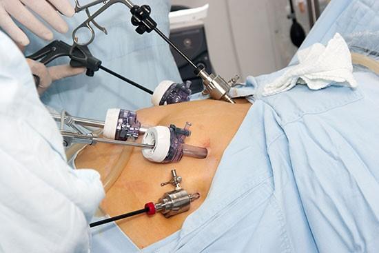 بعد از انجام عمل اسلیو معده چه بیماریهایی درمان میشوند؟