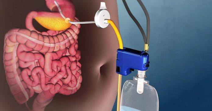 برای استفاده از قرص های پس از عمل جراحی اسلیو معده چه نکاتی را باید رعایت کنیم؟