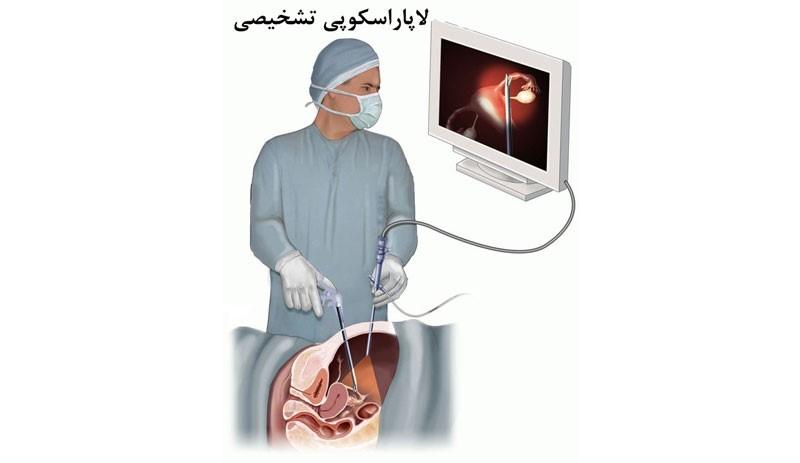 آیا با انجام عمل جراحی اسلیو معده بیماری آپنه خواب درمان میشود؟