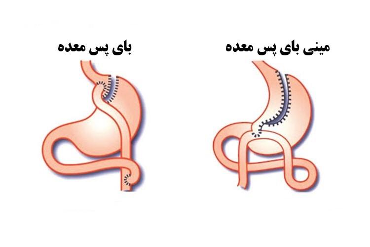 عمل مینی بای پس معده و عمل جراحی بای پس معده تقریبا شبیه هم هستند.