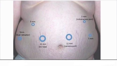 در روش جراحی بای پس معده کاهش وزن به طور یک دفعه ای انجام نمی شود