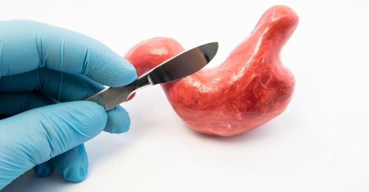 در جراحی بای پس معده پزشک متخصص معده را برش می دهد