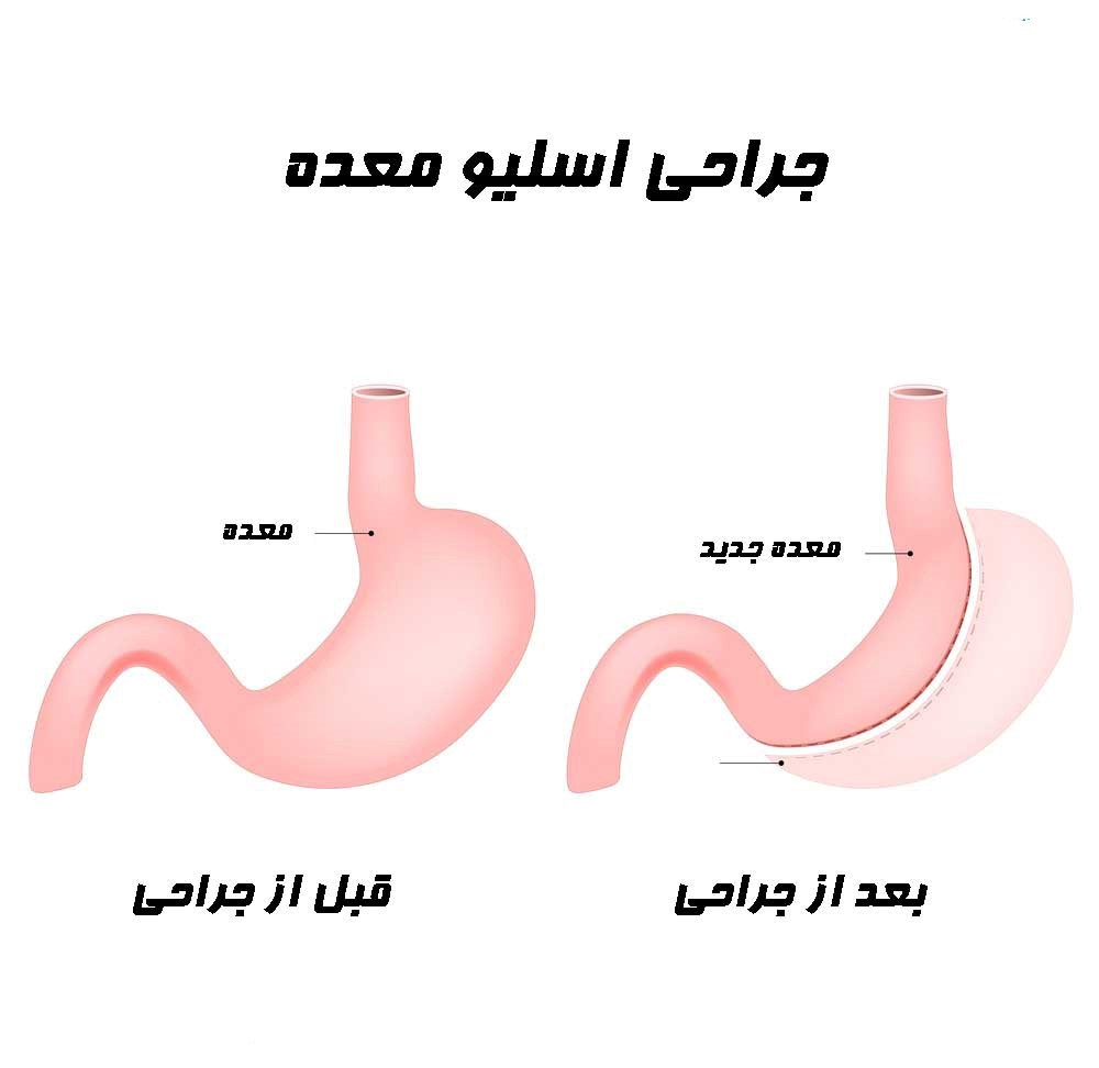 در عمل جراحی اسلیو معده بخشی از معده را کاهش می دهند