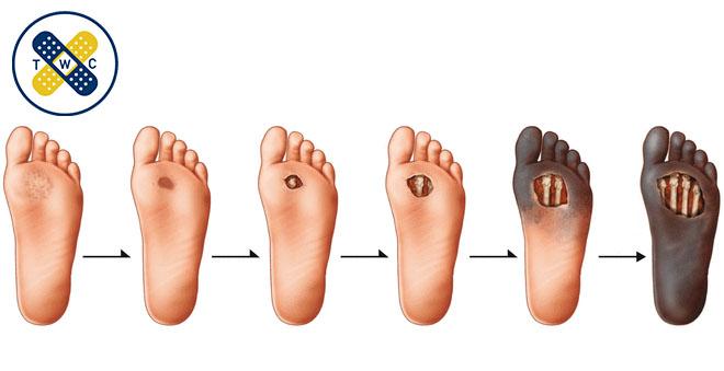 بیماران دیابتی اگر در ناحیه ی پا بی حسی طولانی مدتی را داشته باشند