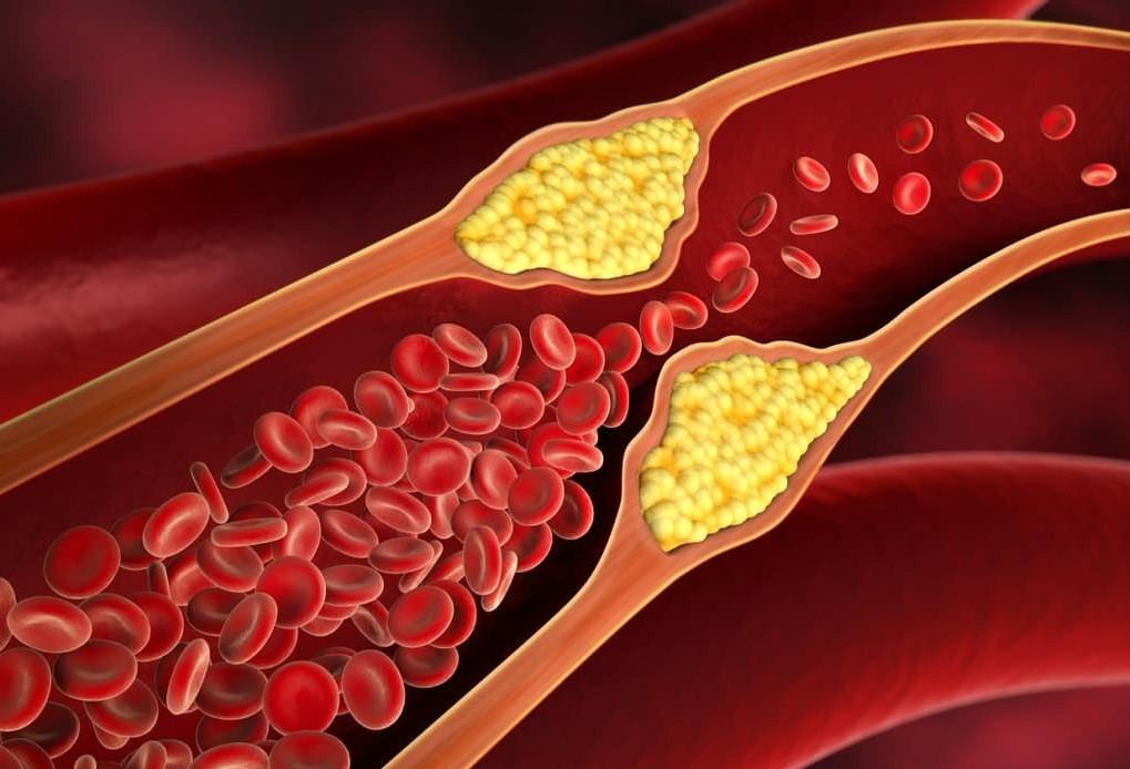 افزایش چربی و فشار خون:
