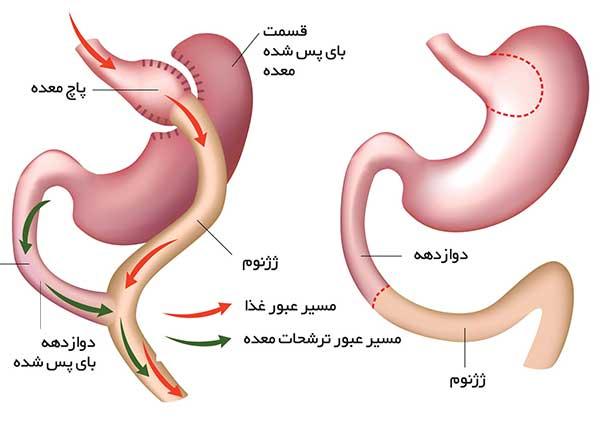 جراحی بای پس روده یعنی جابجایی دوازدهه چگونه است؟