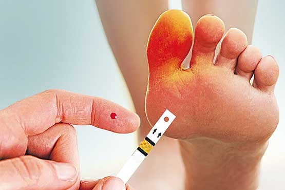 جراحی پای دیابتی