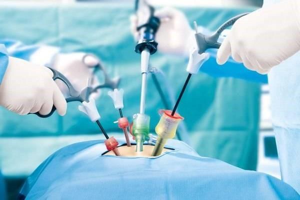 برخی از اندام هایی که با بیماری درگیر شدند را از بدن خارج می کنند.