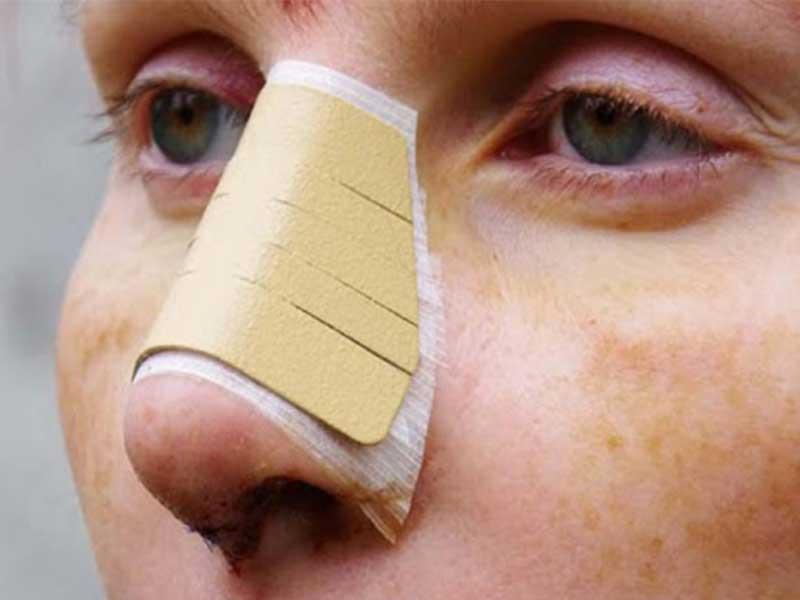 توصیه های درمانی قبل از جراحی بینی در افراد دیابتی