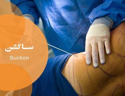 عمل جراحی لیپوساکشن: