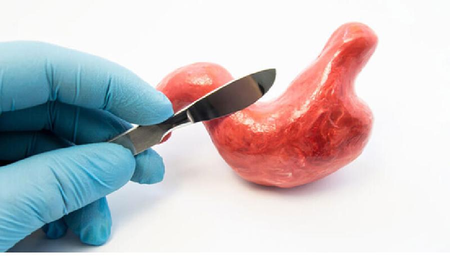 دو دسته از بیماران از انجام روش بالون سود می برند