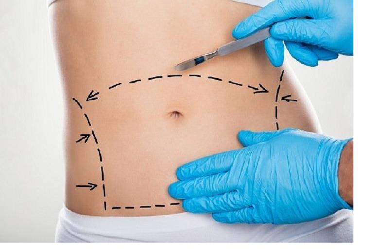ریسک عمل جراحی چاقی در مقایسه با صفرا چقدر خواهد بود؟