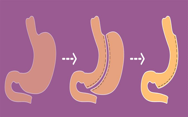 نتایج ماموگرافی به چه صورت است ؟