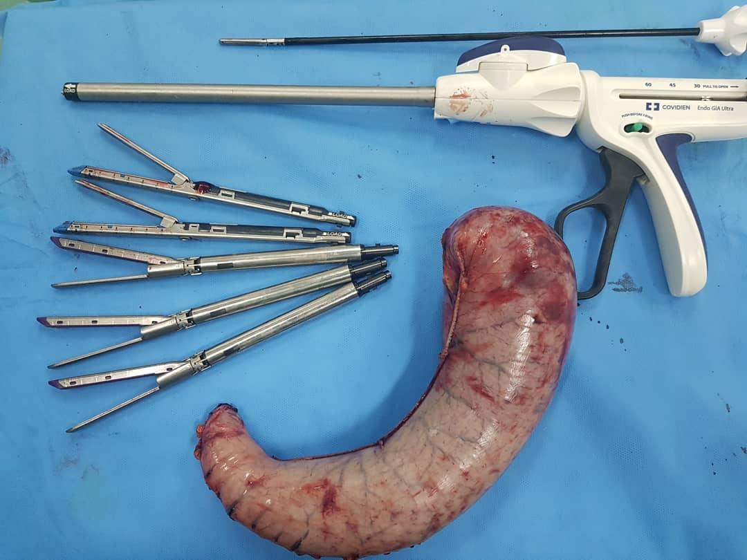 عمل جراحی اسلیو معده چیست و چه کاربردهایی دارد؟