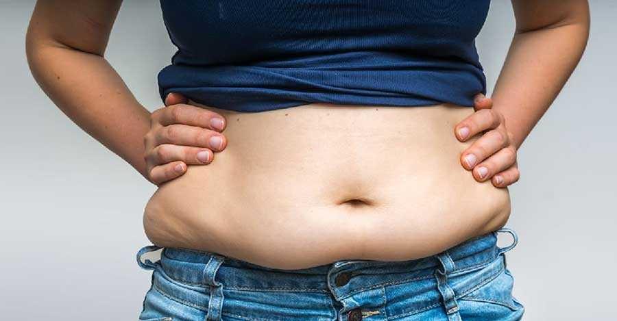 بالون گذاری در معده و رابطه آن با عمل جراحی چاقی