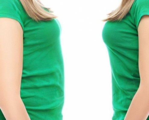 آیا تغذیه بعد از عمل اسلیو بیمار همیشگی می باشد؟
