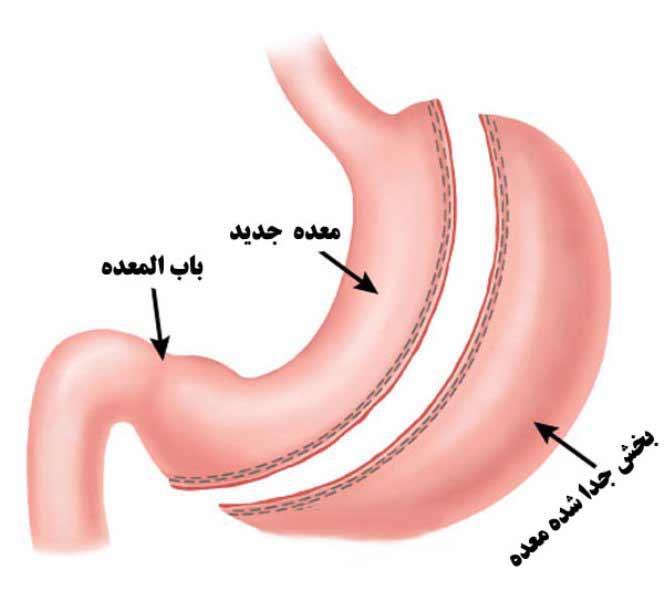سایر برنامه های غذایی موثر برای روزه گرفتن بعد از عمل جراحی اسلیو معده
