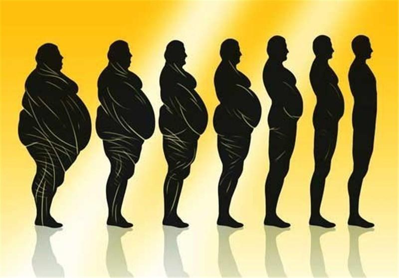 میزان کاهش وزن در عمل اسلیو معده