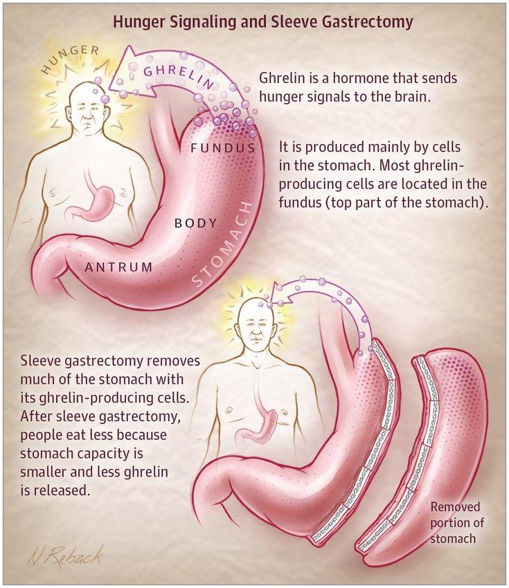 آیا پس از عمل اسلیو معده، بدن می تواند مواد مورد نیاز خود را جذب کند؟