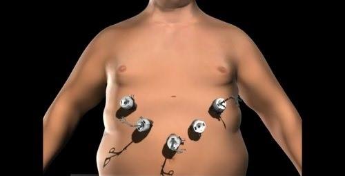 اگر شما قبل جراحی مشکل کبد چرب داشته باشید
