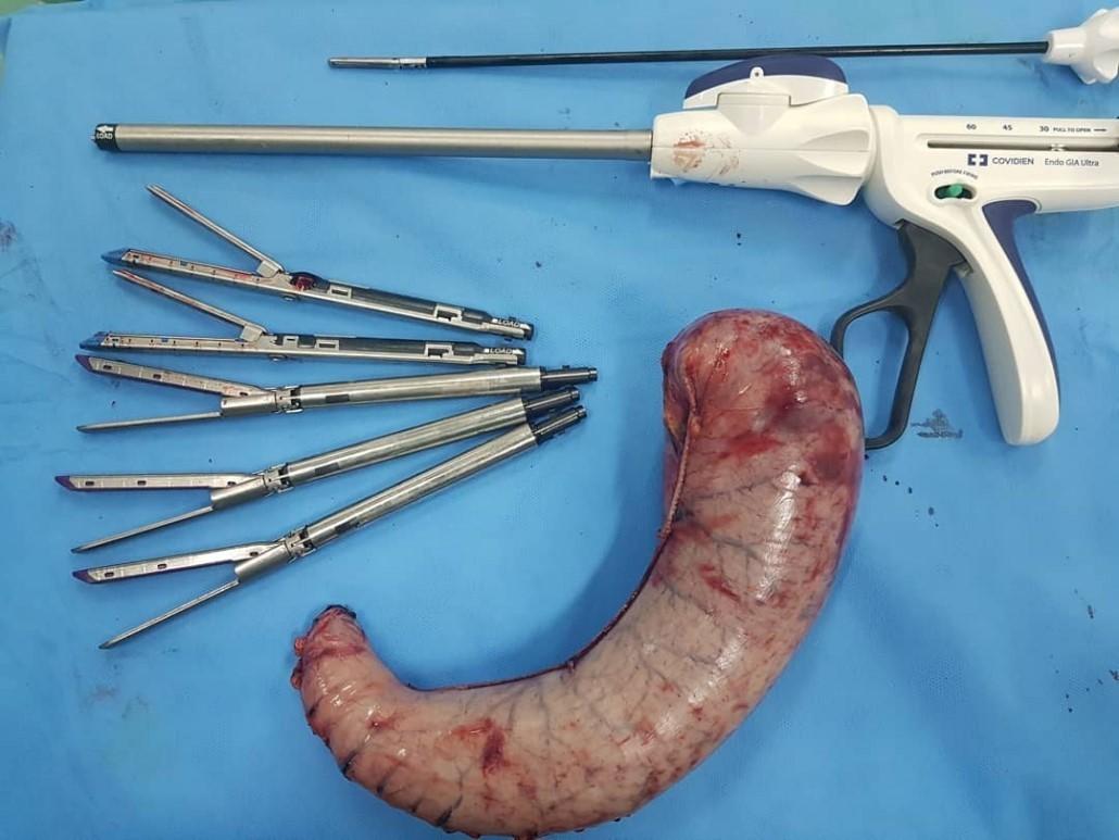 جراحی اسلیو معده چیست؟