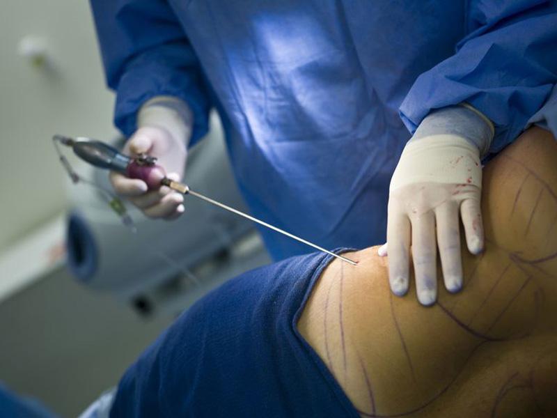 علائم آمبولی بعد از لیپوماتیک