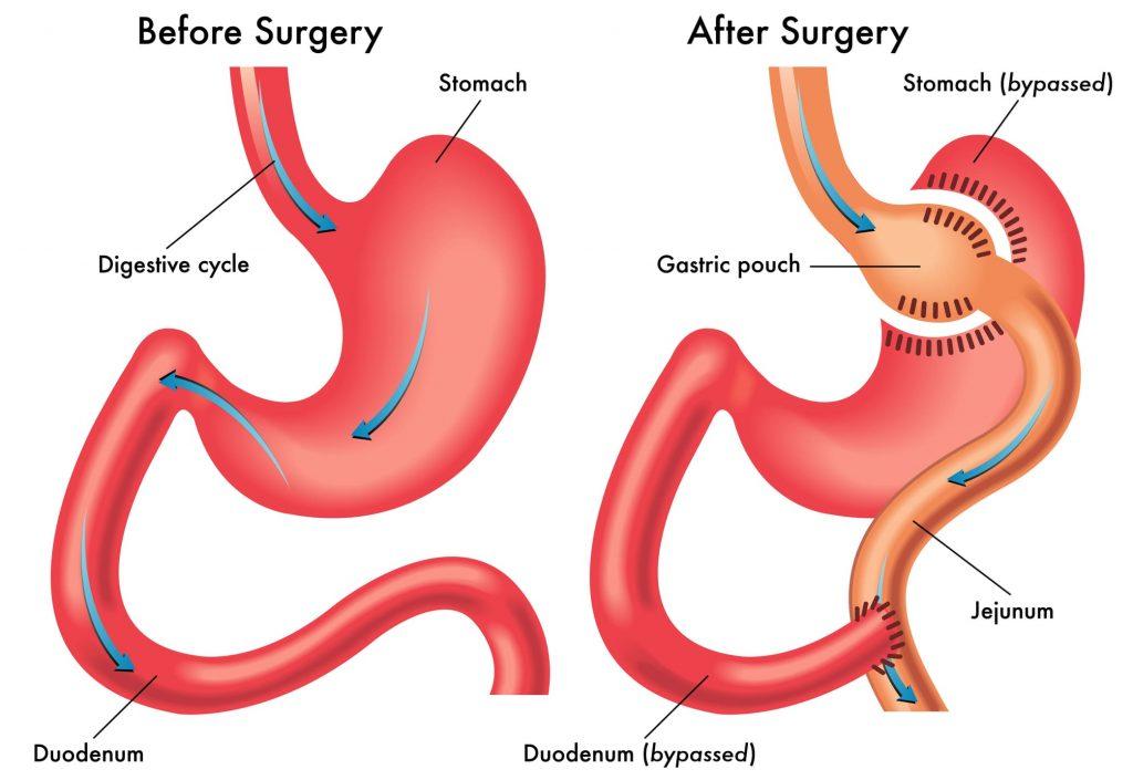 دلایل به وجود آمدن عمل جراحی بای پس معده چیست؟