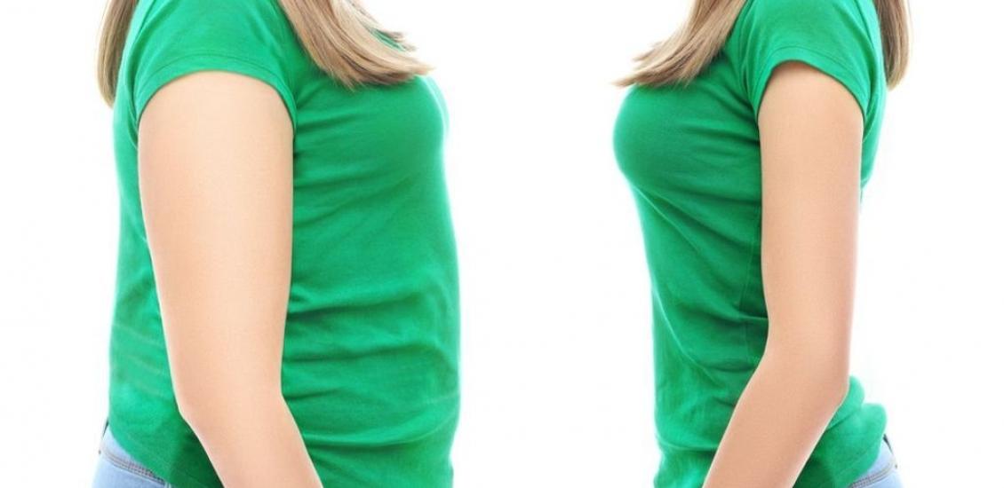فرد باردار که عمل اسلیو معده انجام داده است، باید به این نکات توجه کند: