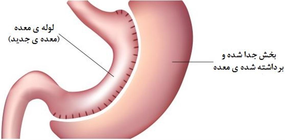 کاهش وزن در اثر انجام عمل اسلیو معده در کرج، در طی 1 سال: