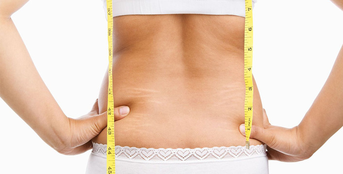 اگر شخصی دچار چاقی مفرط شده است
