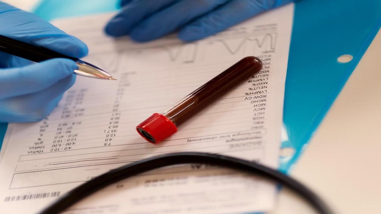 تفسیر نتایج Egfr در آزمایش خون