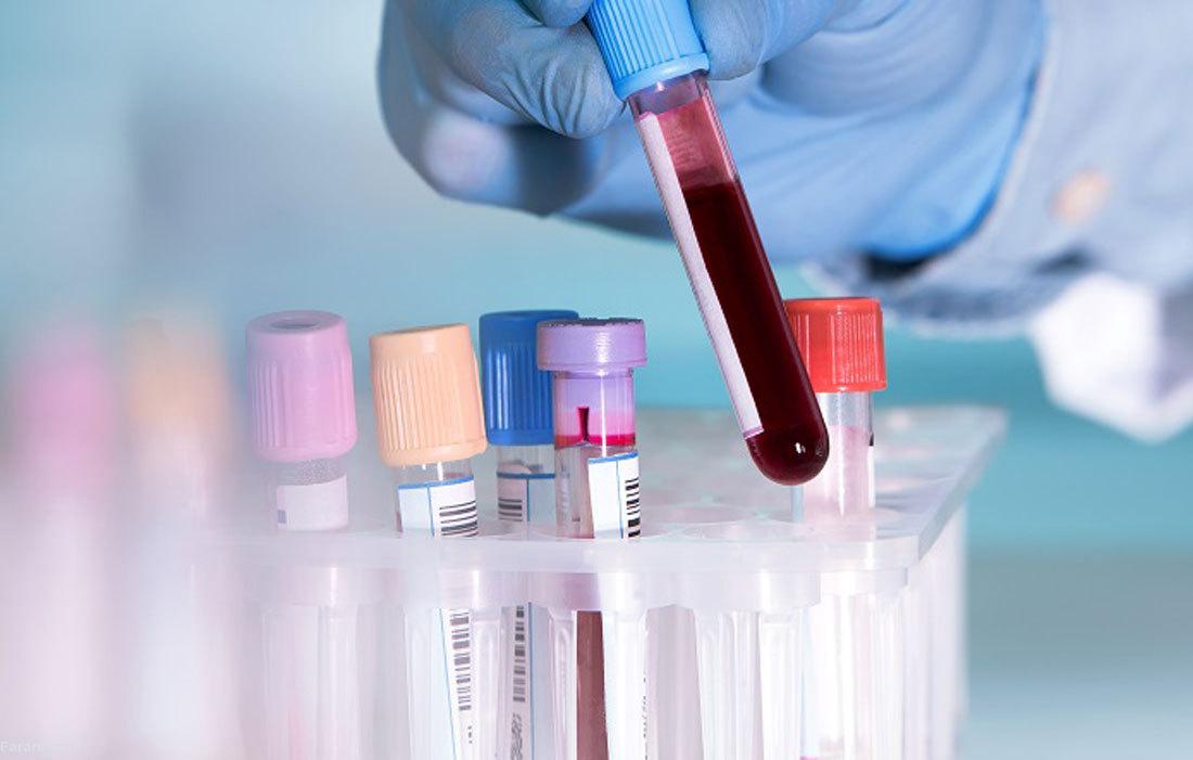 آزمایش خون چیست؟