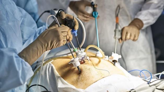 مزیت اسلیومعده در مقابل جراحی بای پس معده