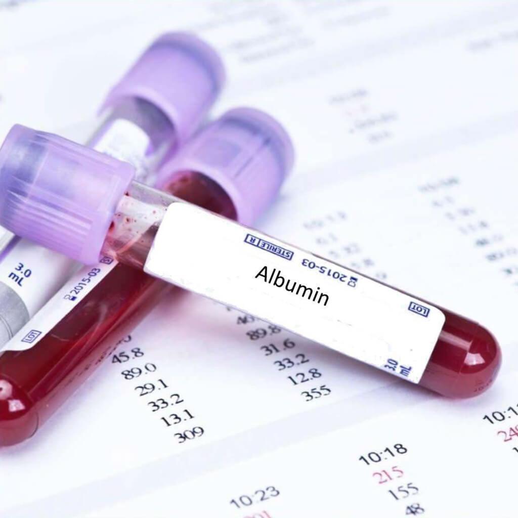 عارضه های به وجود آمده ی ناشی از دیابت بارداری چیست؟