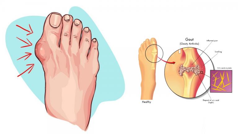 عوارض بالا رفتن سطح اوره در خون