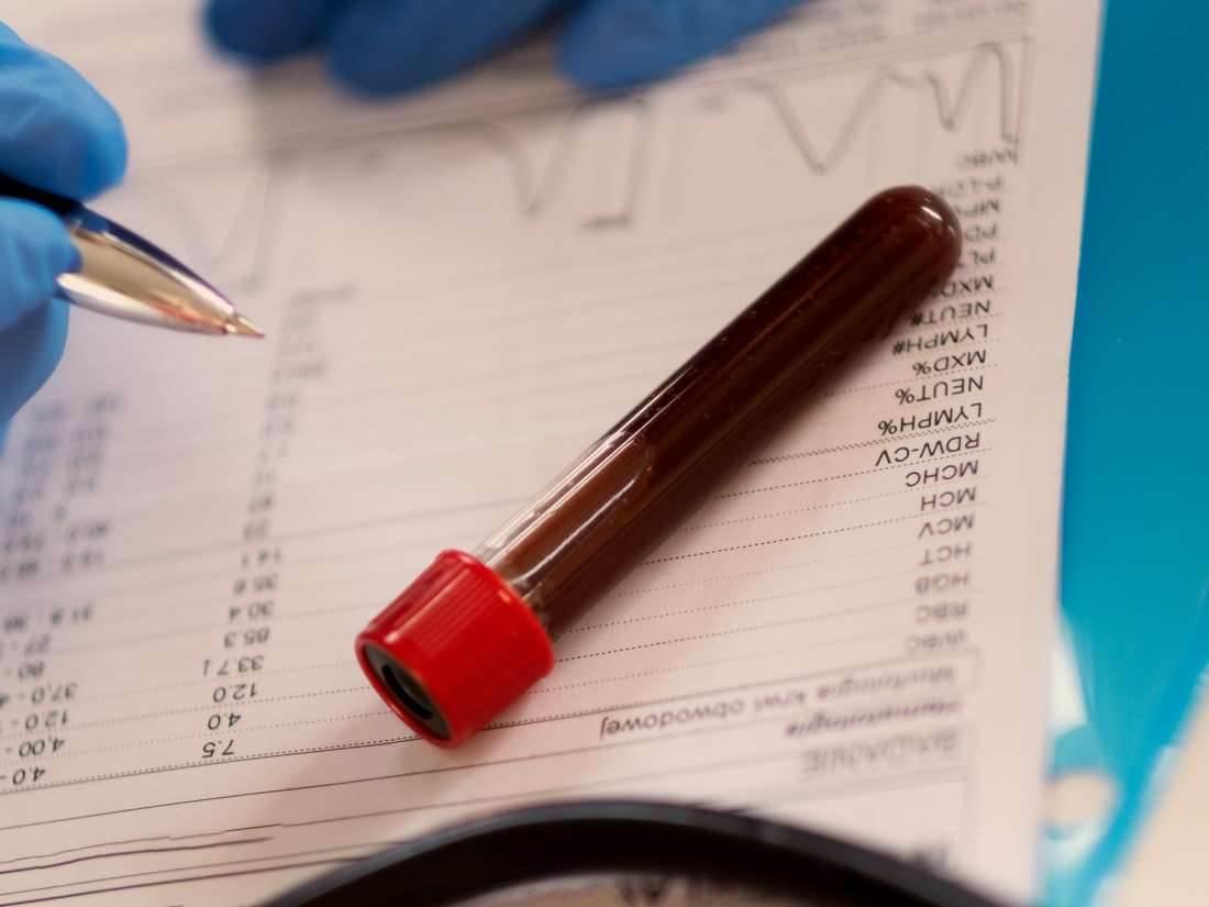 تجویز آزمایشات اوره توسط پزشک به چه دلیل اتفاق میافتد؟