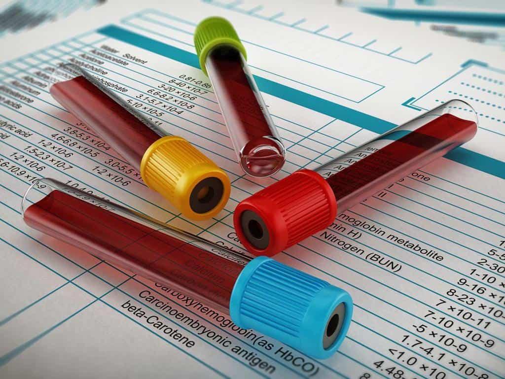میزان قند خون خود را بر اساس دستور پزشک به صورت مرتب و سر وقت چک کنید