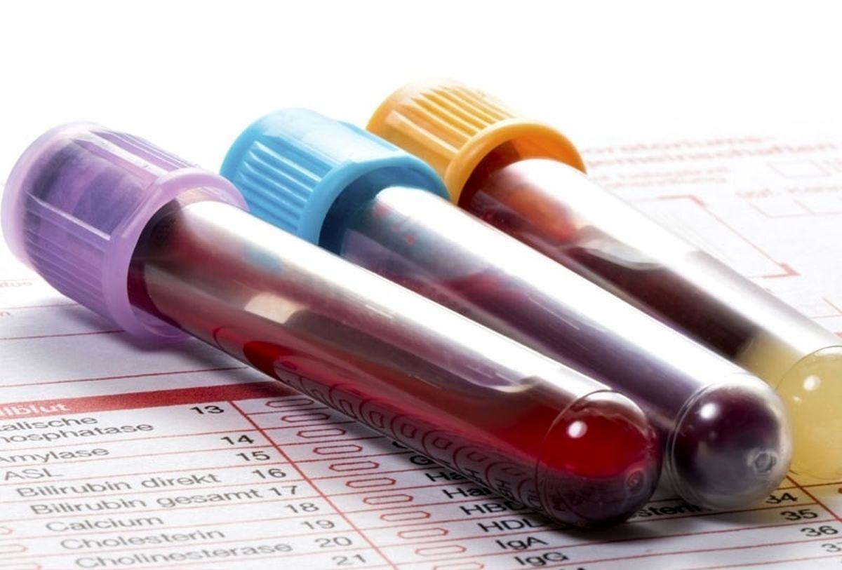 در وضعیتی که فرد مراجعه کننده دارای میزان قند خون ناشتایی (FBS) برابر با صد و یک الی صد و بیست و پنج میلی گرم در دسی لیتر داشته باشد