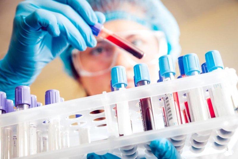 در برخی موارد داروهایی وجود دارند که می تواند در کاهش میزان اوره خون نیز اثر گذار باشند