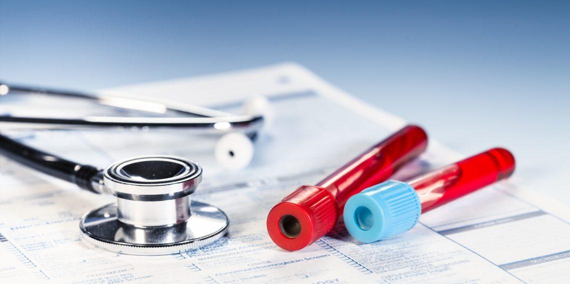 در آزمایش خون، بالا بودن سطح اوره نشاندهنده چیست؟