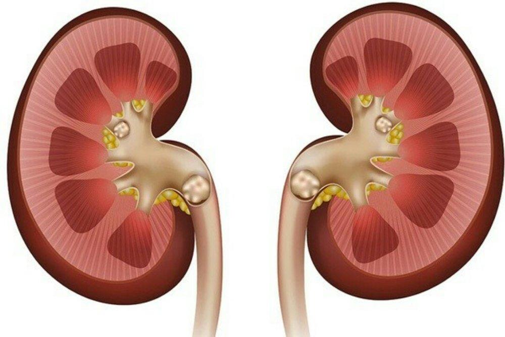 بیماری سنگ کلیه یکی از عوارض بیماری کراتینین در خون می باشد