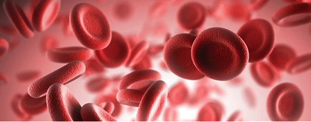 چه زمانی فرد با کمبود کراتینین در خون مواجه میشود ؟