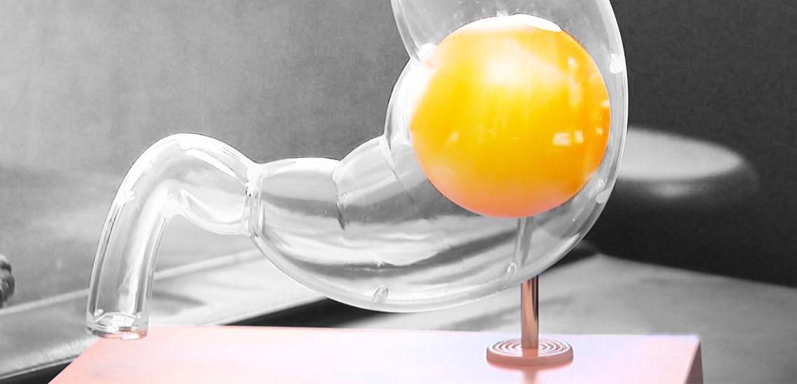 برای حل موقت مشکل بیمار می توان از بالن استفاده نمود