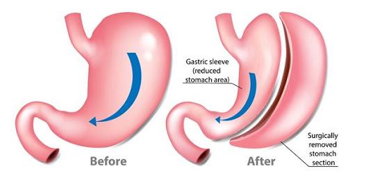 نتایج قبل و پس از عمل جراحی