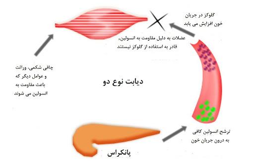 اضافهوزن چه نقشی در به وجود آمدن قند خون نوع دوم میگذارد؟