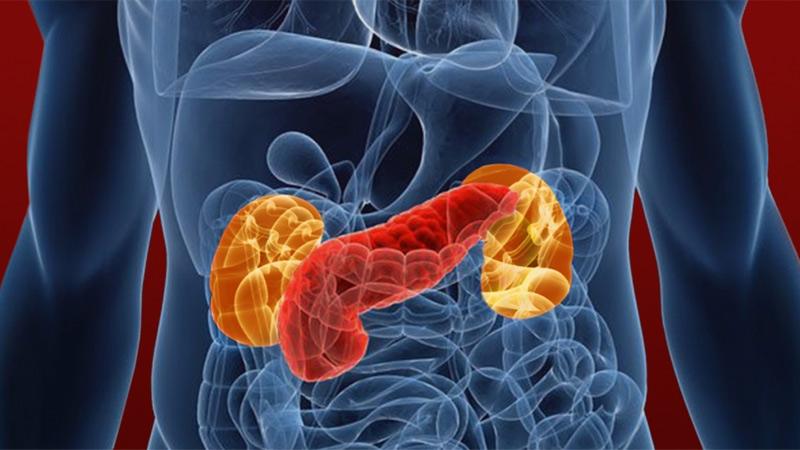 پیوند لوزالمعده برای درمان دیابت