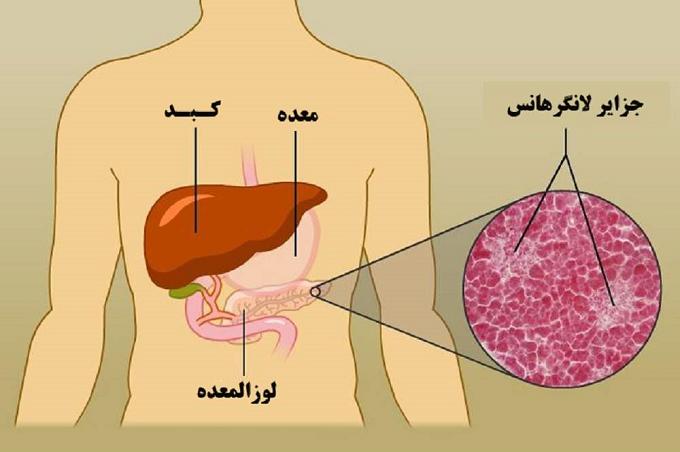 میزان موفقیت عمل لوزالمعده برای درمان دیابت
